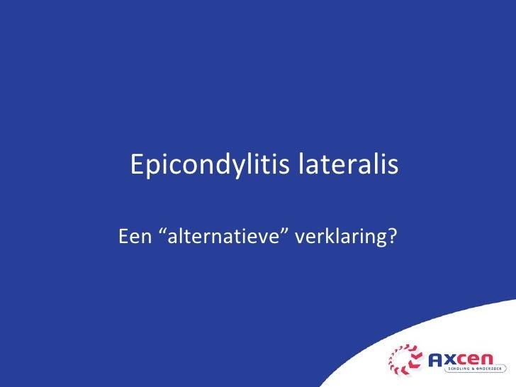 """Een """"alternatieve"""" verklaring? Epicondylitis lateralis"""