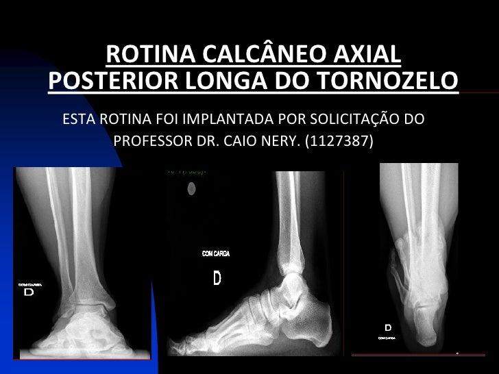 ROTINA CALCÂNEO AXIALPOSTERIOR LONGA DO TORNOZELOESTA ROTINA FOI IMPLANTADA POR SOLICITAÇÃO DO      PROFESSOR DR. CAIO NER...
