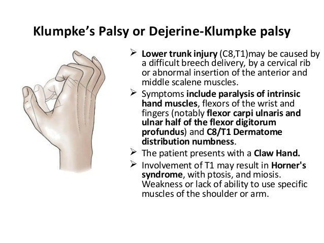 Klumpke's Palsy or Dejerine-Klumpke palsy  Lower trunk injury (C8,T1)may be caused by a difficult breech delivery, by a c...