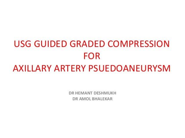 USG GUIDED GRADED COMPRESSION              FORAXILLARY ARTERY PSUEDOANEURYSM          DR HEMANT DESHMUKH           DR AMOL...