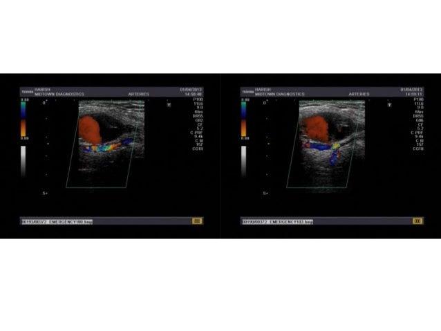 Axillary artery pseudoaneurysm