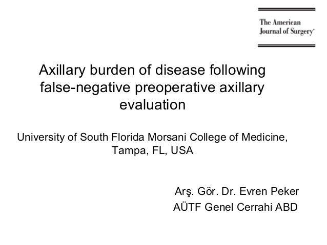 Axillary burden of disease following false-negative preoperative axillary evaluation University of South Florida Morsani C...