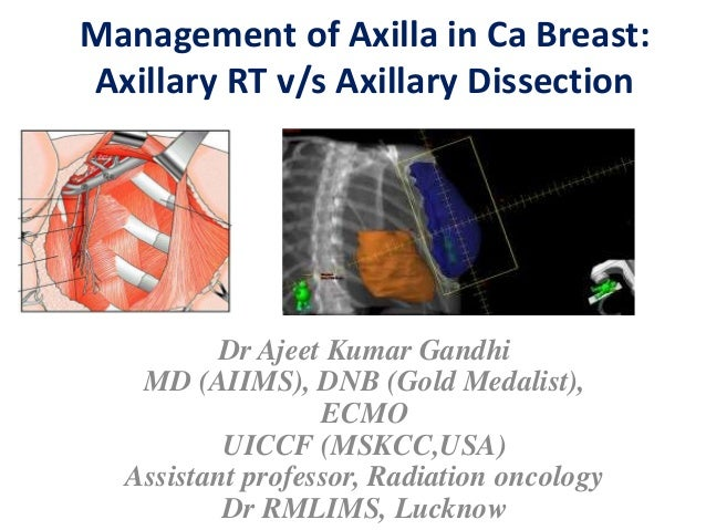 Management of Axilla in Ca Breast: Axillary RT v/s Axillary Dissection Dr Ajeet Kumar Gandhi MD (AIIMS), DNB (Gold Medalis...