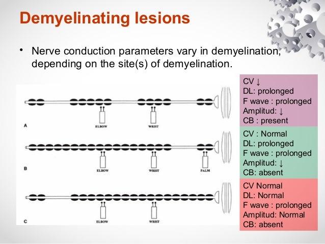 Nerves conduction study, Axonal loss vs Demyelination