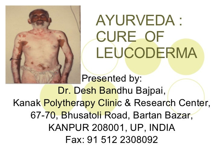 AYURVEDA :  CURE  OF  LEUCODERMA Presented by: Dr. Desh Bandhu Bajpai, Kanak Polytherapy Clinic & Research Center, 67-70, ...