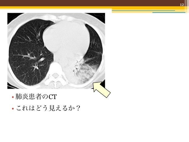 12• 肺炎患者のCT• これはどう見えるか?