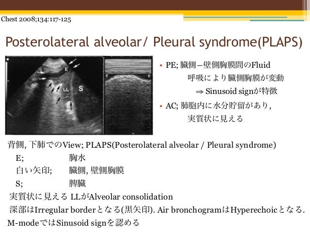Chest 2008;134:117-125 Posterolateral alveolar/ Pleural syndrome(PLAPS)                                    • PE; 臓側―壁側胸膜間の...