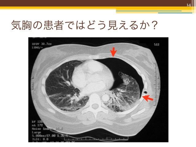 14気胸の患者ではどう見えるか?