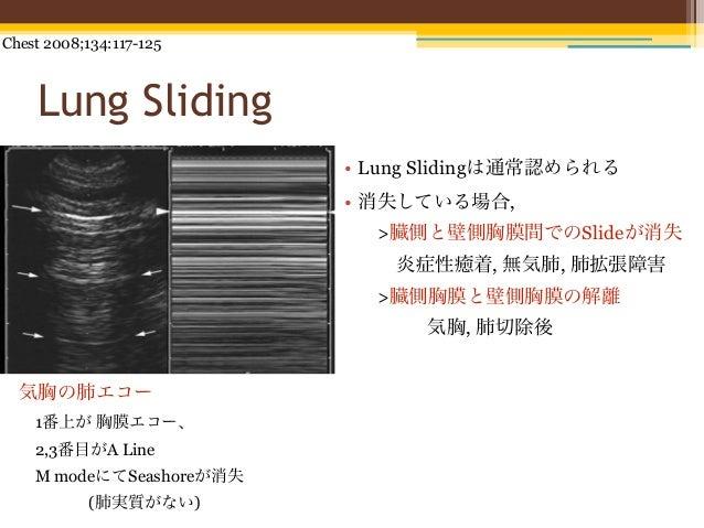 Chest 2008;134:117-125    Lung Sliding                         • Lung Slidingは通常認められる                         • 消失している場合, ...