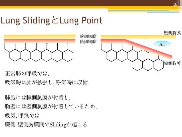 16Lung SlidingとLung Point                            壁側胸膜                   壁側胸膜                   臓側胸膜                   ...
