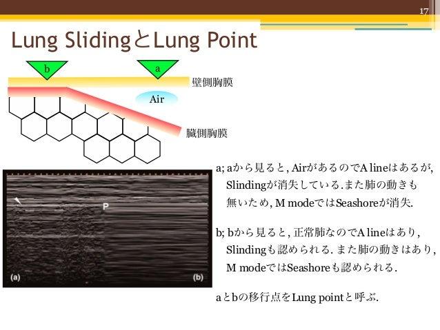 17  Lung SlidingとLung Point              b                                     a                                          ...