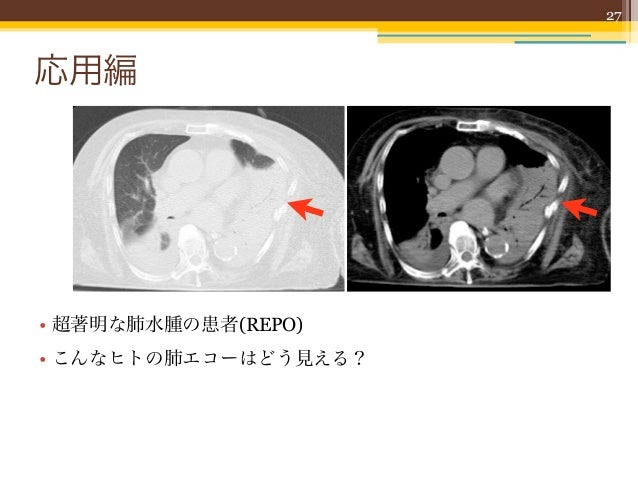 27応用編• 超著明な肺水腫の患者(REPO)• こんなヒトの肺エコーはどう見える?