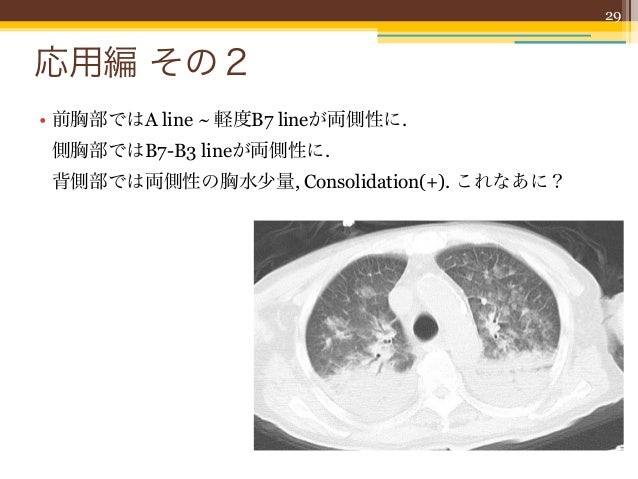 30Alveolar-interstitial syndromeの評価                                                Am J Em Med 2006;24:689-96• AIS; びまん性の間...