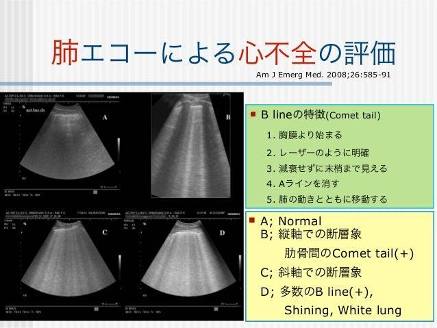 肺エコーによる心不全の評価                                 Am J Emerg Med. 2008;26:585-91           11か所; 前胸部(上・中・下), 側胸部(上・中・下) x (左・...