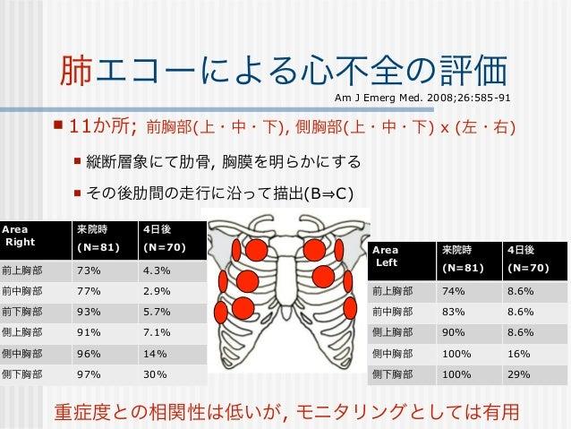 48胸水評価                       Critical Care 2007;11:205• 肺エコーは胸水評価に最適な方法の1つ.▫ 肝臓, 脾臓 - 横隔膜周囲で判別しやすく, 特に難しくもない手技.• 肺エコー所見と胸水...