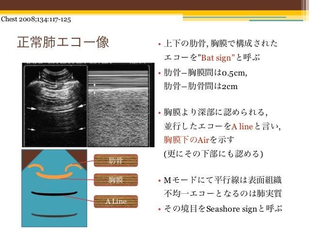 """Chest 2008;134:117-125    正常肺エコー像                       • 上下の肋骨, 胸膜で構成された                                   エコーを""""Bat sign""""..."""