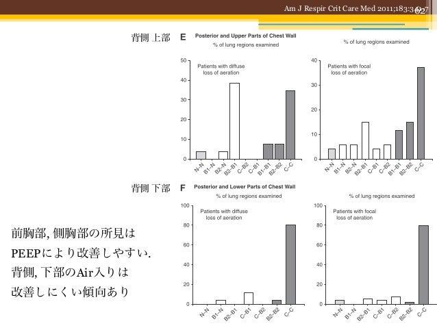 63SBT前後の肺エコーで抜管後のDistressを予測する                                       Crit Care Med 2012; 40: 2064–2072• ICU患者100名において, SBT...
