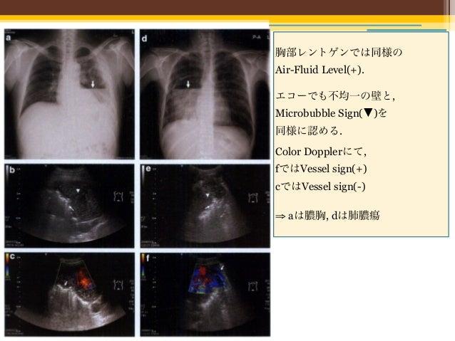 • d; 膿胸    VesselはPassive atelectasis内に存在           (比較的Straight, Air bronchogram様に見える)• h; 肺膿瘍   VesselがPericavitary cons...