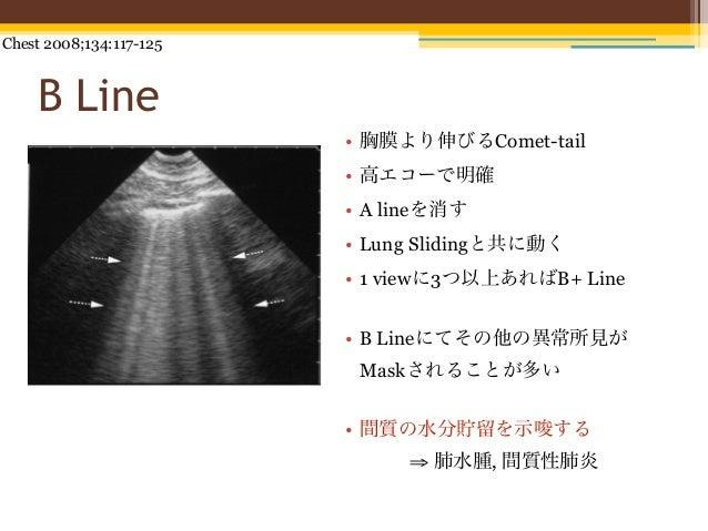 Chest 2008;134:117-125    B Line                         • 胸膜より伸びるComet-tail                         • 高エコーで明確            ...