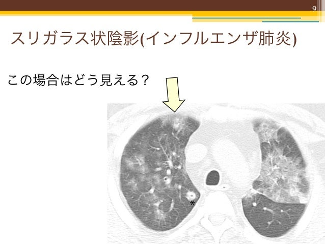 9スリガラス状陰影(インフルエンザ肺炎)この場合はどう見える?