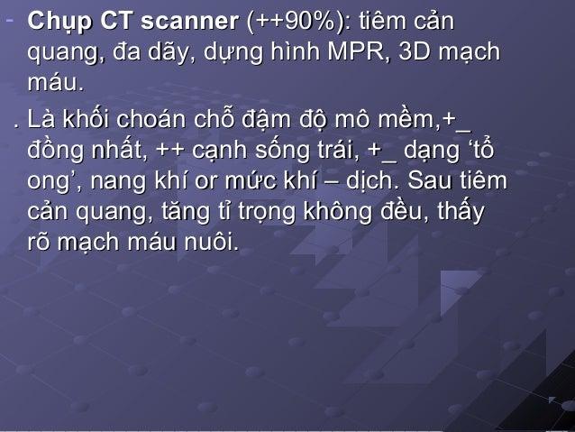 -Nội soi PQ: cho hình ảnh gián tiếp (-) - Chẩn đoán phân biệt : chụp CT có CQ ++>> tìm bất thường Đ-TM + PBL trong thùy : ...