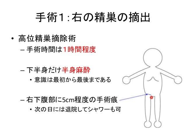 手術1:右の精巣の摘出 • 高位精巣摘除術 – 手術時間は1時間程度 – 下半身だけ半身麻酔 • 意識は最初から最後まである – 右下腹部に5cm程度の手術痕 • 次の日には退院してシャワーも可