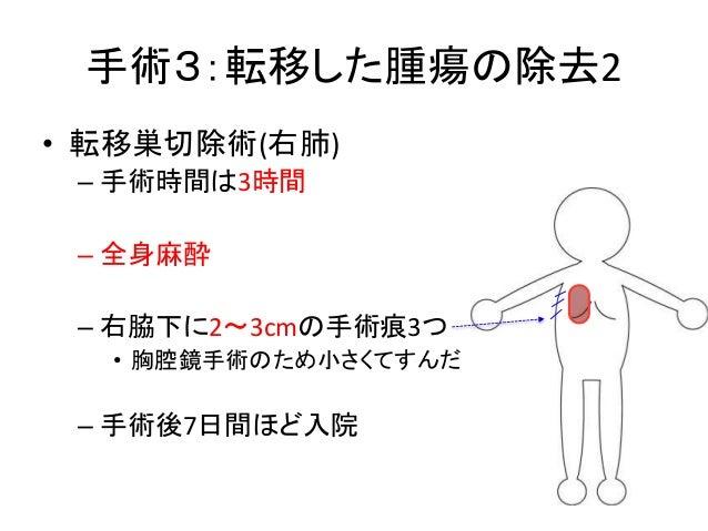 手術3:転移した腫瘍の除去2 • 転移巣切除術(右肺) – 手術時間は3時間 – 全身麻酔 – 右脇下に2〜3cmの手術痕3つ • 胸腔鏡手術のため小さくてすんだ – 手術後7日間ほど入院