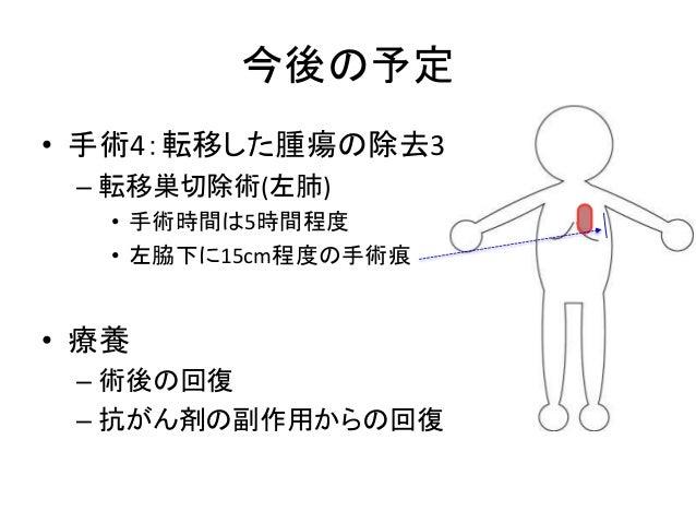 今後の予定 • 手術4:転移した腫瘍の除去3 – 転移巣切除術(左肺) • 手術時間は5時間程度 • 左脇下に15cm程度の手術痕 • 療養 – 術後の回復 – 抗がん剤の副作用からの回復
