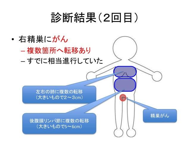診断結果(2回目) • 右精巣にがん – 複数箇所へ転移あり – すでに相当進行していた 左右の肺に複数の転移 (大きいもので2〜3cm) 後腹膜リンパ節に複数の転移 (大きいもので5〜6cm) 精巣がん