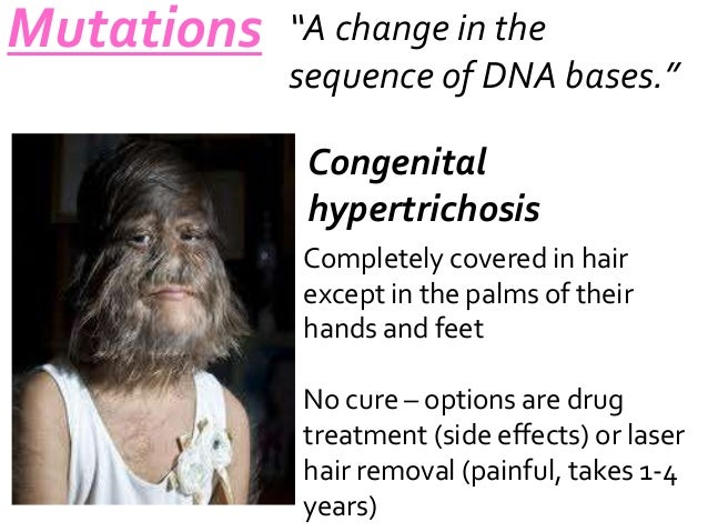 "Mutations  ""A change in the sequence of DNA bases."" Congenital hypertrichosis Completely covered in hair except in the pal..."