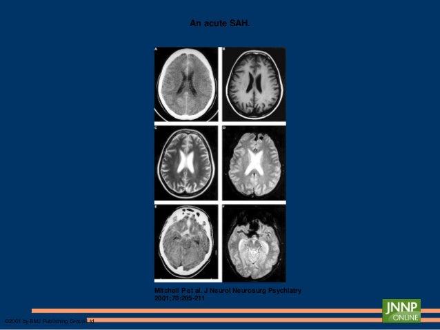 MENENJİT ● Viral/Bakteriyal menenjit – Hızlı başlayan, şiddetli baş ağrısı – Ateş – Meningismus ● Opportunistik enfeksiyon...