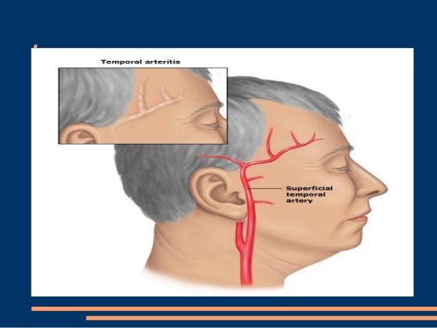 İlaçlar - toksisite - metabolik baş ağrılar ● Nitratlar ● monoaminooksidaz inhibitorleri, ● kronik analjezi kullanımı ● me...