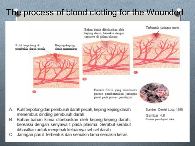 The process of blood clotting for the Wounded