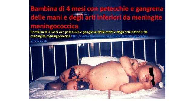 Baby sitter 2017 malattie 3