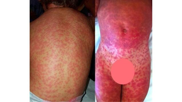 Cosa fare • Infezione in uno stadio iniziale e superficiale pomate antibiotiche e/o anche impacchi con antisettici. • Se l...