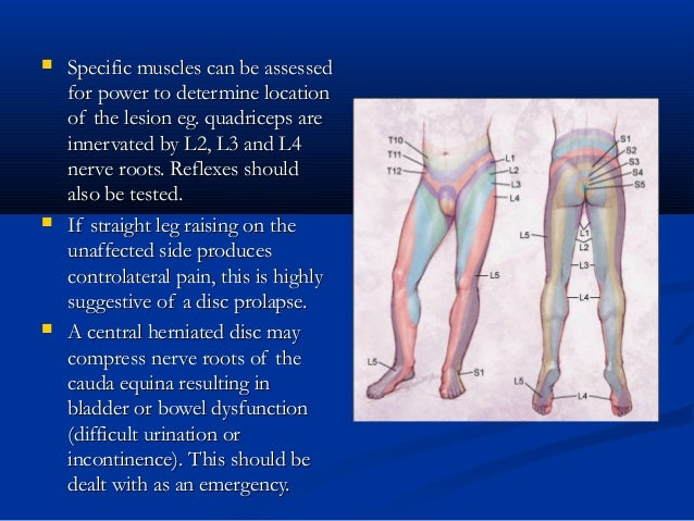  Specific muscles can be assessedSpecific muscles can be assessed for power to determine locationfor power to determine l...