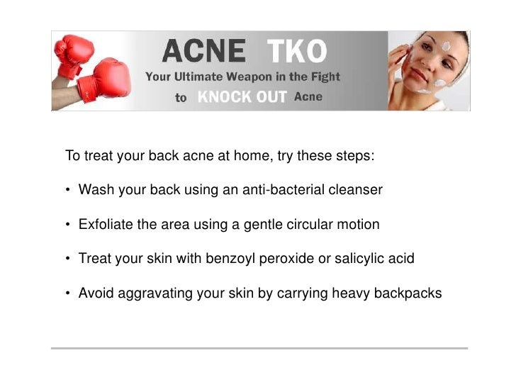 Back Acne Treatment