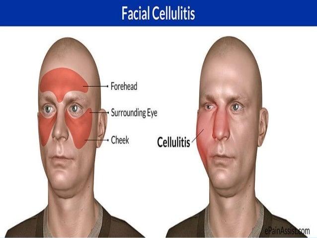 Cellulitis facial picture