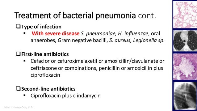 Cipro for bacterial pneumonia