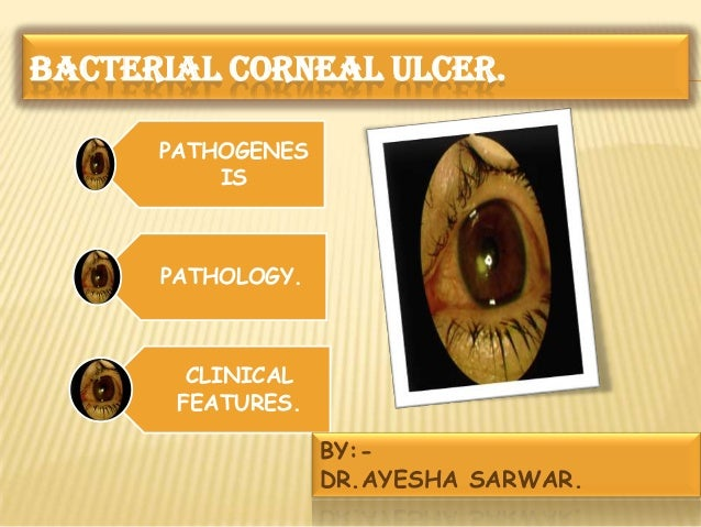 BACTERIAL CORNEAL ULCER. PATHOGENES IS PATHOLOGY. CLINICAL FEATURES. BY:- DR.AYESHA SARWAR.