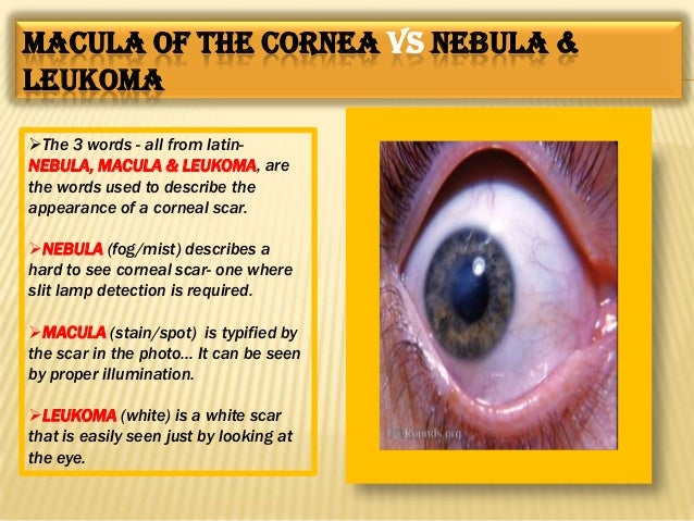 Stages of corneal ulceration.. Regressive  Progressive Cicatrization Leucocytic infiltration PMN leucocytic infiltration ...