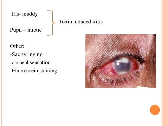 Iris- muddy Toxin induced iritis  Pupil – miotic Other: -Sac syringing -corneal sensation -Fluorescein staining