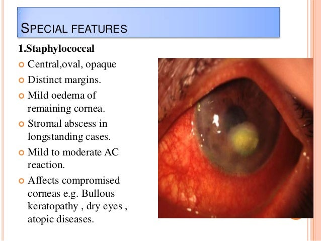 SPECIAL FEATURES 1.Staphylococcal  Central,oval, opaque  Distinct margins.  Mild oedema of remaining cornea.  Stromal ...