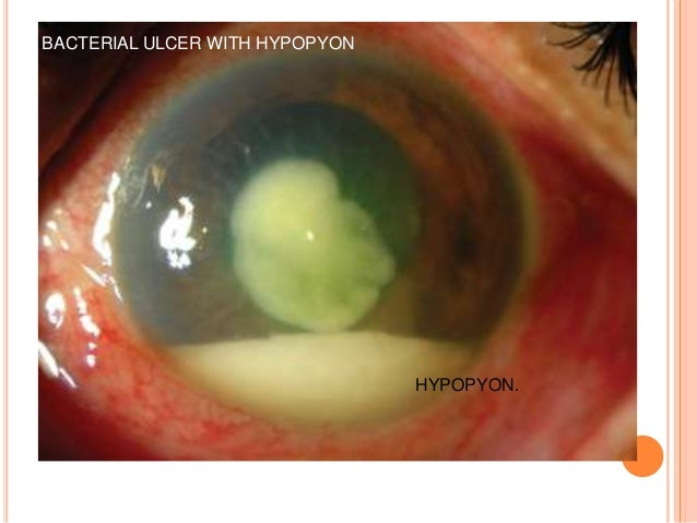 Bacterial corneal ulcer DrBP