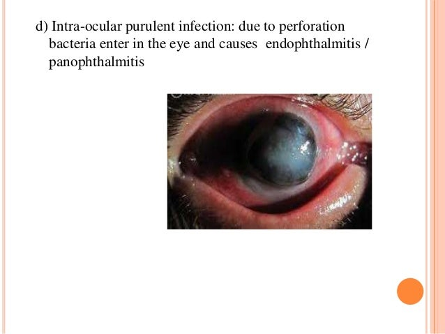 d) Intra-ocular purulent infection: due to perforation bacteria enter in the eye and causes endophthalmitis / panophthalmi...