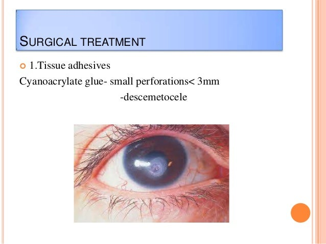 SURGICAL TREATMENT 1.Tissue adhesives Cyanoacrylate glue- small perforations< 3mm -descemetocele 