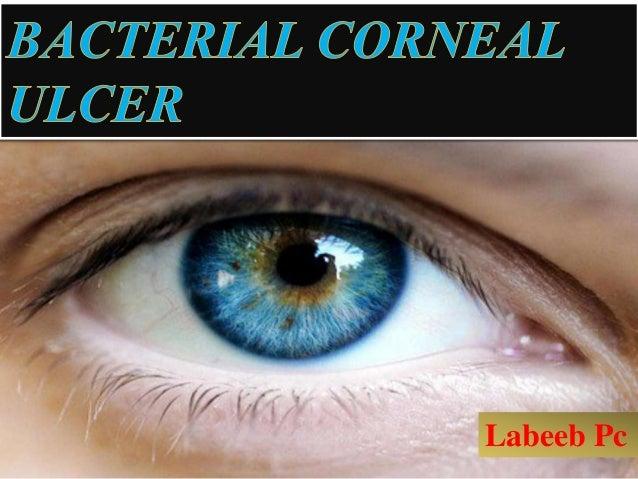 BACTERIAL CORNEAL ULCER Labeeb Pc