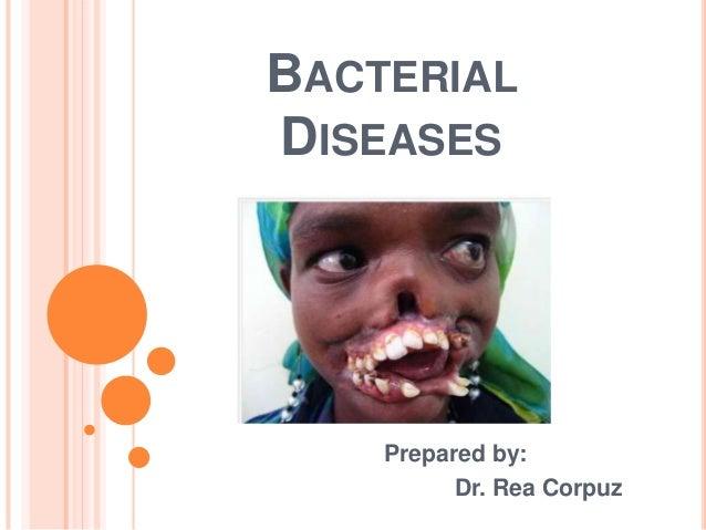 BACTERIALDISEASES    Prepared by:          Dr. Rea Corpuz