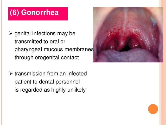 Very good blowjob by a getting gonorrhea simply matchless
