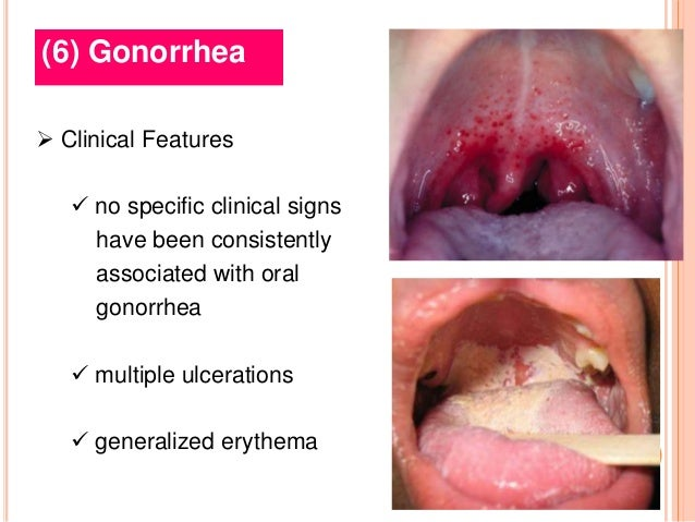 Oral Sexually Transmitted Disease